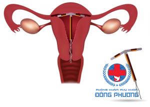 đặt vòng tránh thai khi nào