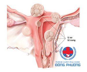 Tác hại của u xơ cổ tử cung là gì?