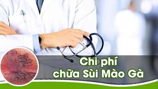 chua-tri-sui-mao-ga-co-het-nhieu-tien-khong