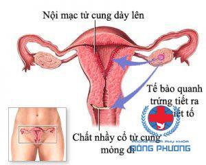 viêm nội mạc tử cung mãn tính
