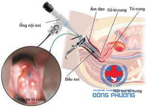 Hình ảnh mô tả mổ nội soi polyp buồng tử cung