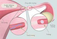 biểu hiện viêm ống dẫn trứng