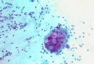 Viêm niệu đạo do chlamydia trichomatis là gì?