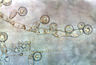 Viêm âm hộ do nấm Cadida chiến 90% ca bệnh