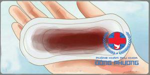 Làm sao điều trị tình trạng ra dịch màu nâu?