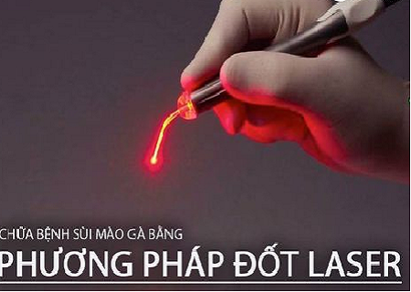 dot-sui-mao-ga-bang-laser