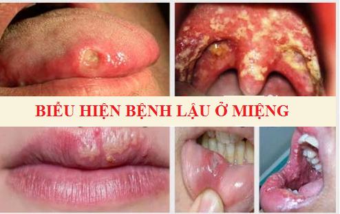 bieu-hien-benh-lau-o-mieng-nguoi